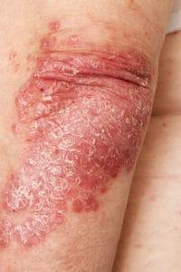 Reishi gegen Psoriasis