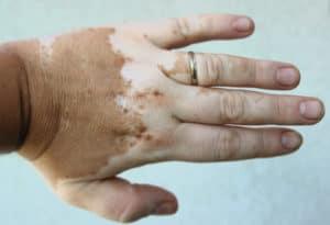 Vitiligo auf der Hand