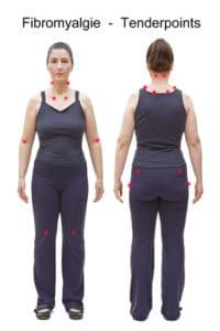Fibromyalgie Tender Punkte bei Frau vor weissem Hintergrund