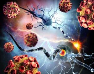 Multiples Sklerose Illustration von Nervenzellen und ihrer Zerstoerung