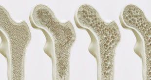 Osteoporose 4 Stadien