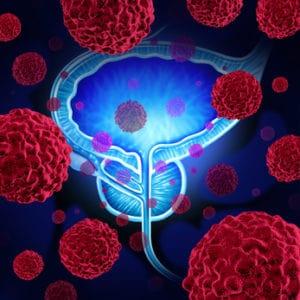 Prostakrebs Darstellung von krebszellen die die Prostata angreifen